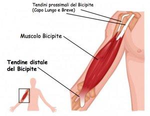 Il tendine del gomito è chiamato anche tendine distale del bicipite. Questo  tendine si inserisce alla tuberosità radiale. aae9fa0e7e44
