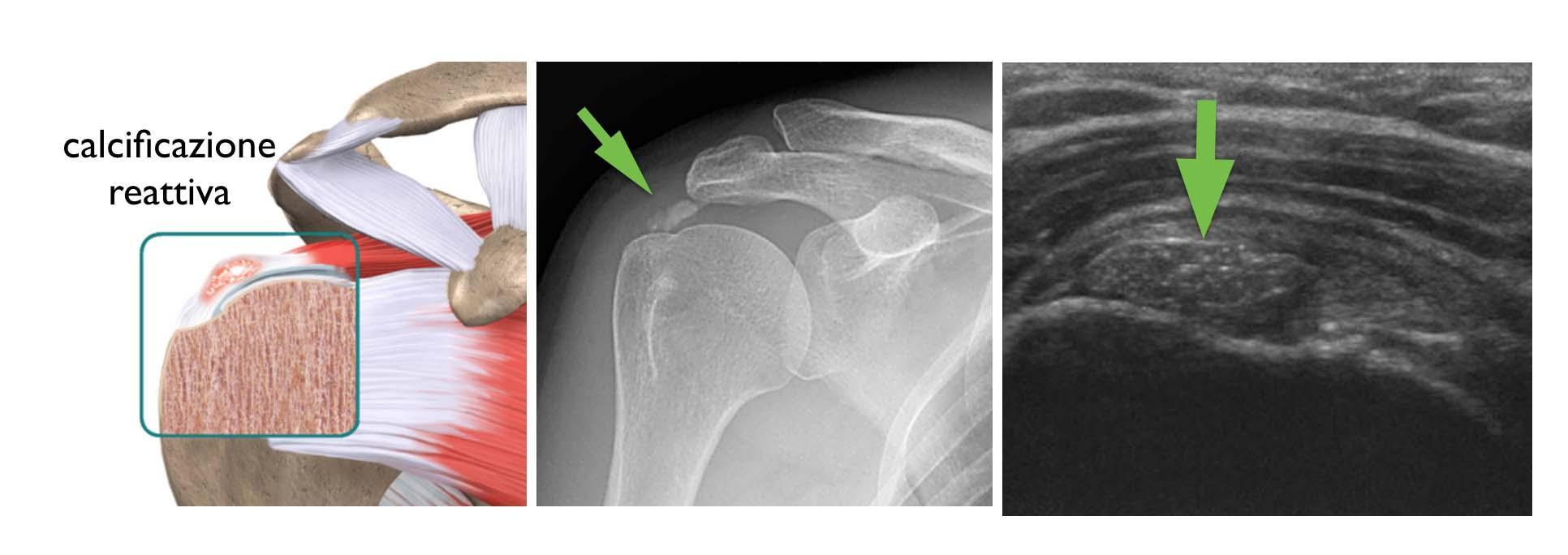 Tendinopatia calcifica della spalla - OTB - Reparto di Ortopedia ... 7e008dc0059c