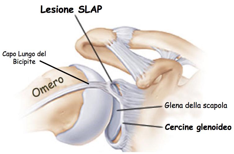 Lesione SLAP