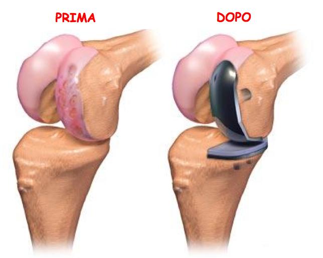 Ginocchio: La protesi di ginocchio