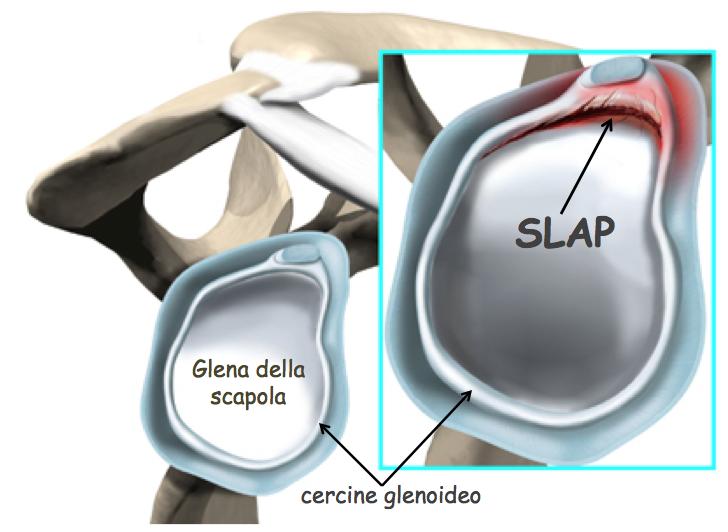 SLAP 3