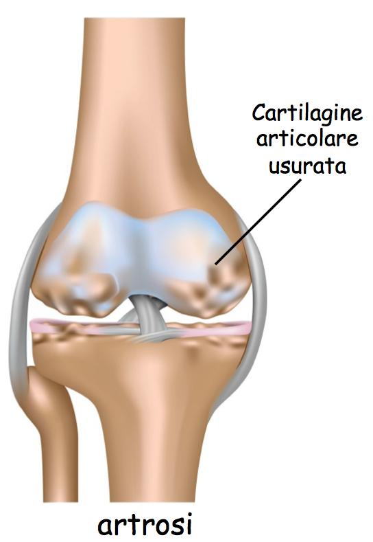 Artrosi del piede e della caviglia: ecco come riconoscerle