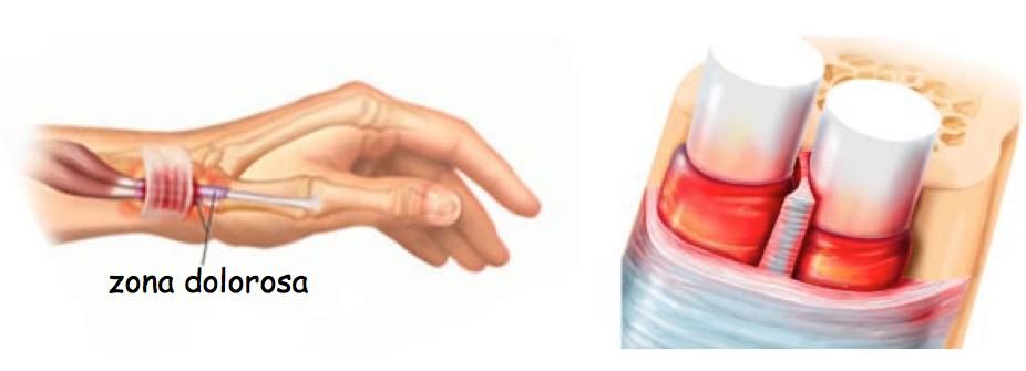 Dolore al polso: traumi e lesioni. Le cause più comuni