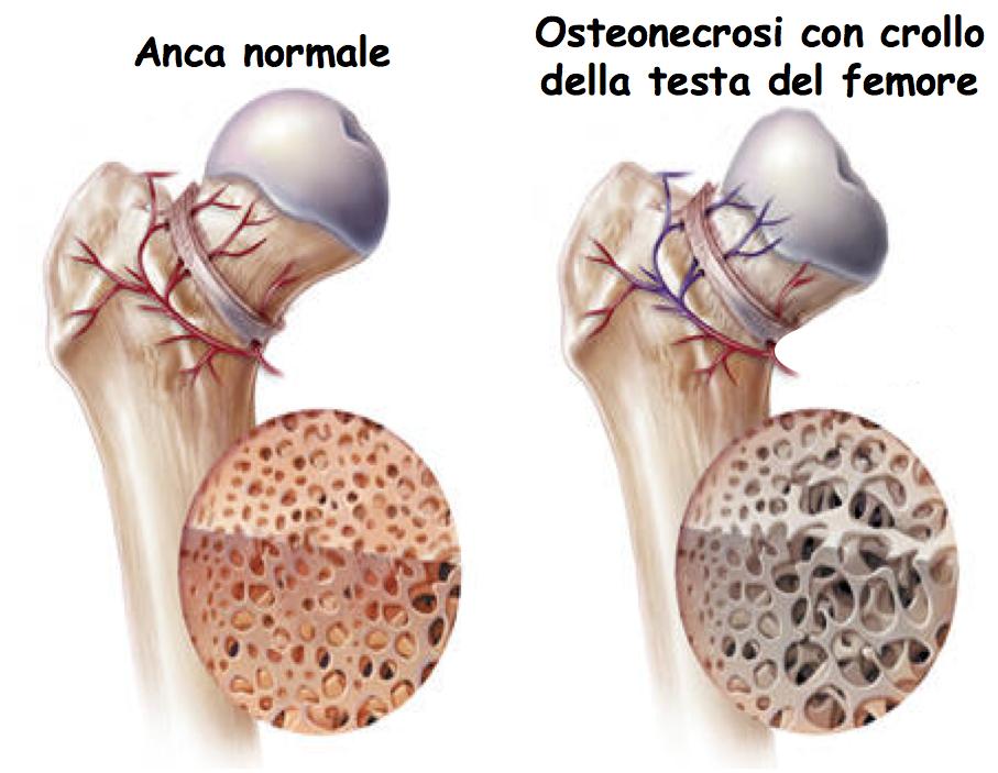 osteonecrosi2